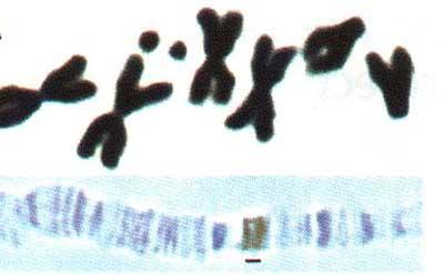 kỹ thuật và phương pháp nhuộm nhiễm sắc thể
